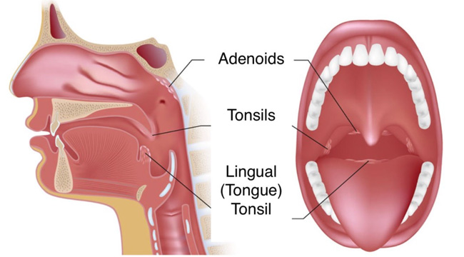 tonsile-and-adenoids-featured-image